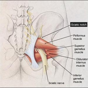 Sciatica Running Injury - Sciatica Exercises - The Good And The Bad