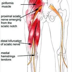 Sciatic Neuralgia Icd 9 - How Can Magnetic Therapy Relieve Sciatica?